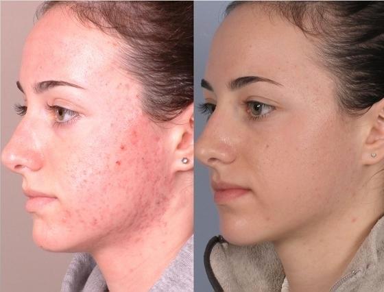 Химический пилинг фото, до и после