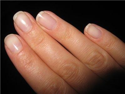 слоятся ногти, что можно сделать
