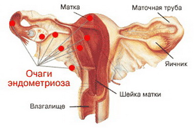 гинекологические причины задержки месячных